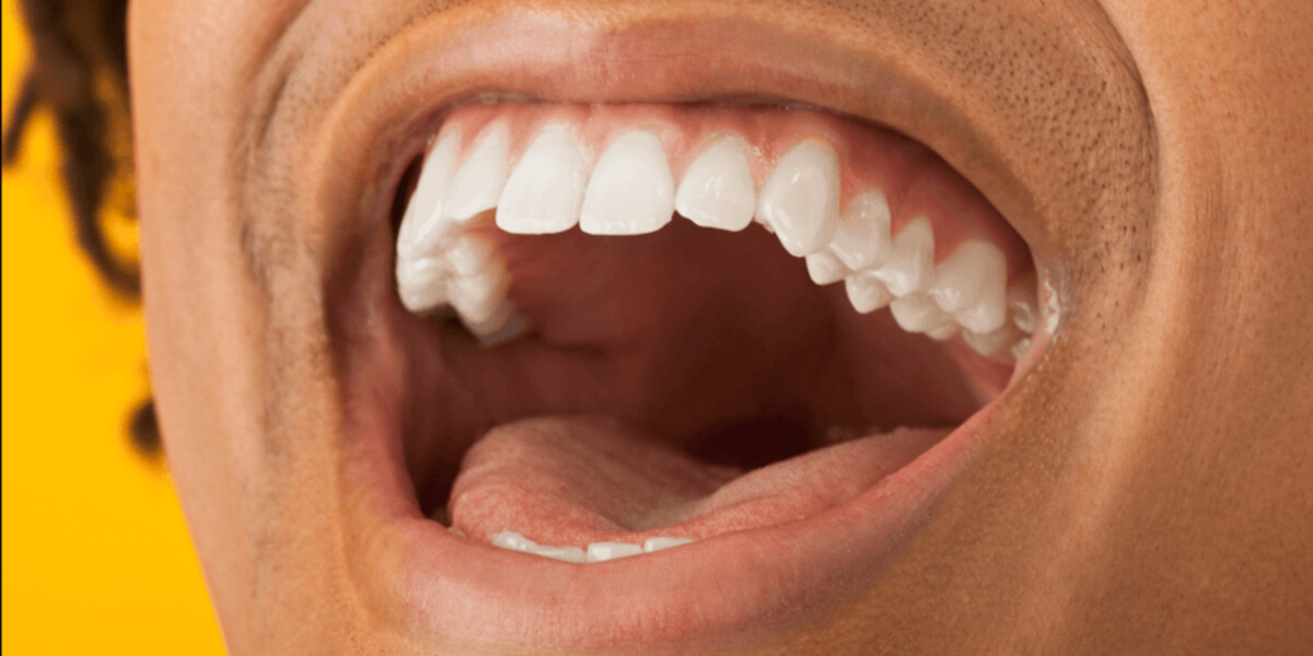 does adipex cause dry mouth